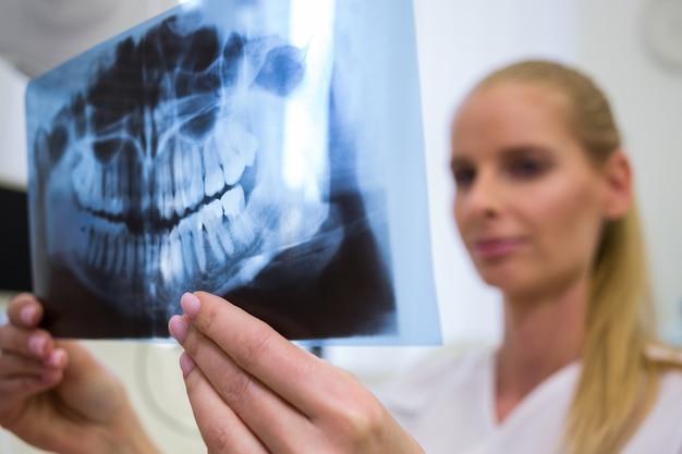 Zahnarzt, der zahnärztliche röntgenplatte betrachtet