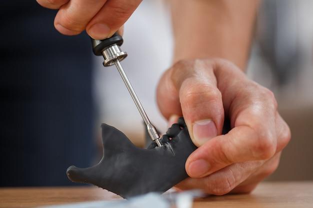Zahnarztpraxis mit minischraubenmodell auf zahnmodell. kieferorthopädische zahnheilkunde. falsche zähne