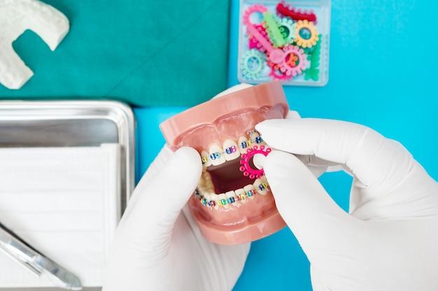 Zahnarztwerkzeuge und kieferorthopädisches modell auf blau