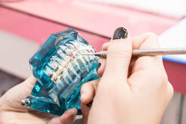 Zahnarztwerkzeuge und kieferorthopädisches modell auf blau.