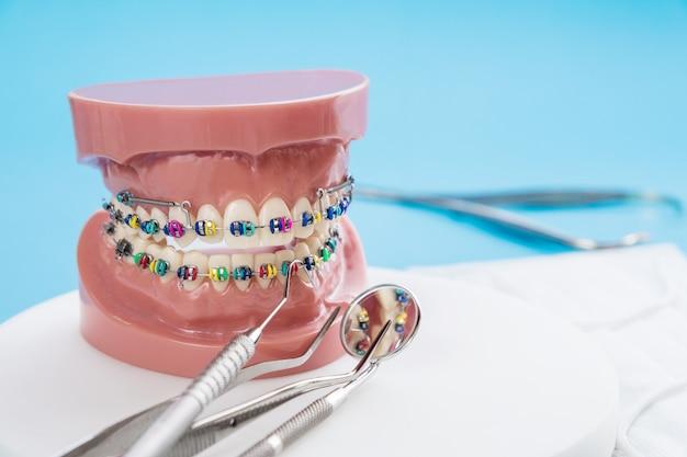 Zahnarztwerkzeuge und kieferorthopädisches modell auf blauem hintergrund.