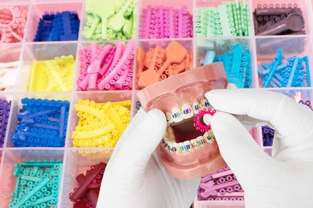 Zahnarztwerkzeuge und kieferorthopädisches modell auf dem blauen hintergrund, flache lage, draufsicht.