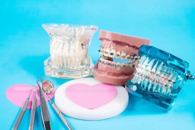 Zahnarztwerkzeuge und kieferorthopädisches modell.