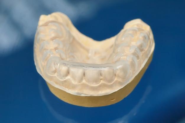 Zahnform der zahnprothese, menschliches zahnfleischmodell aus ton