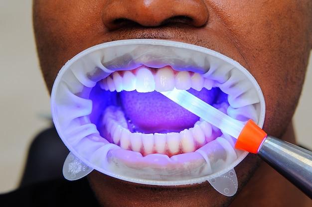 Zahnfüllende uv-lampe