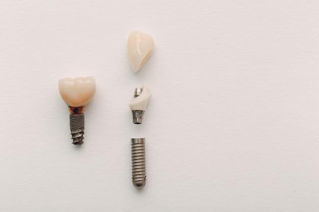Zahnimplantat eines menschlichen zahnes und seiner teile auf weiß