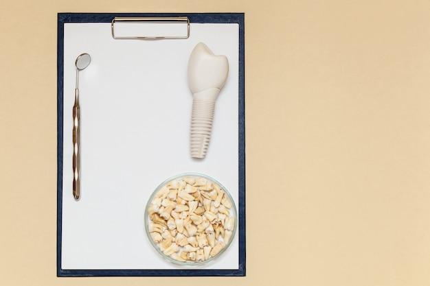 Zahnimplantat zahnspiegelzähne und ordner mit clip für papierblätter a4 auf beigem hintergrund