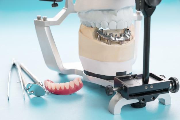 Zahnimplantatarbeiten sind abgeschlossen und gebrauchsfertig / temporäres abutment von zahnimplantaten