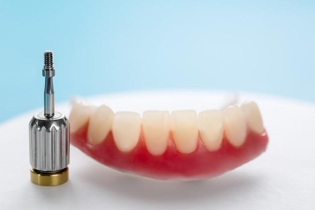 Zahnimplantate unterstützten overdenture.