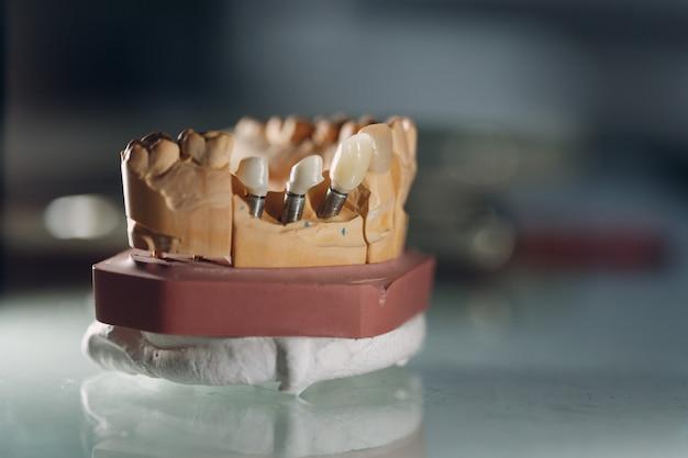 Zahnlayout des menschlichen kiefers mit zähnen und implantaten.