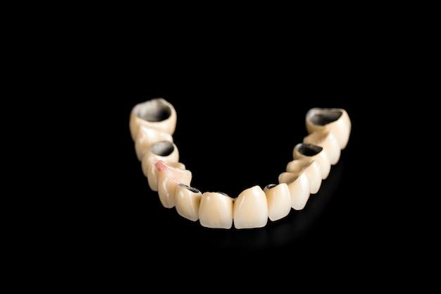 Zahnmedizinische keramische brücke auf getrenntem schwarzem