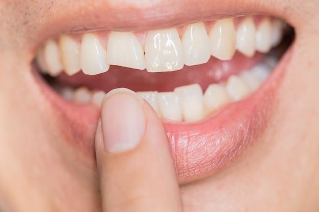 Zahnproblem mit hässlichem lächeln. zahnverletzungen oder zähne, die im mann brechen. trauma und nervenschaden des verletzten zahnes, bleibende zahnverletzung.
