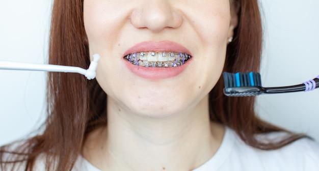 Zahnspange im lächelnden mund eines mädchens glatte zähne von zahnspangen