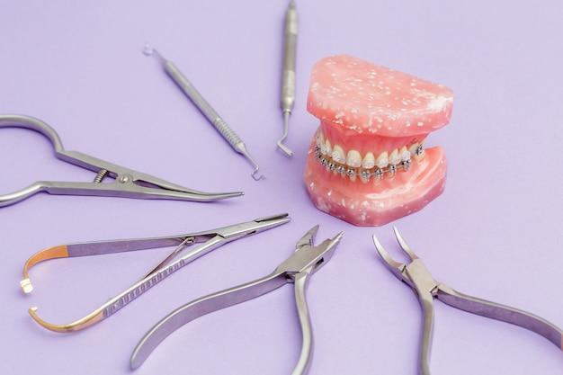 Zahnspangen aus metalldraht am kieferorthopädischen modell