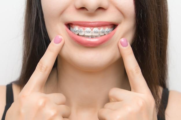 Zahnspangen im mund einer glücklichen frau, die sich nach dem aufhellen mit zwei fingern an den zahnspangen zeigen. selbstligierende halterungen mit metallbindern und grauen gummibändern oder gummibändern für ein perfektes lächeln