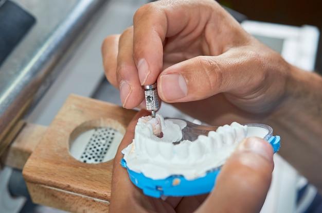 Zahntechniker mit einem schraubendreher, um keramische zahnimplantate in seinem labor zu fixieren