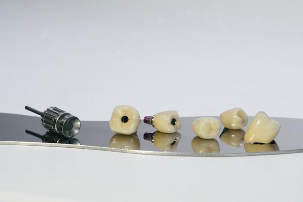 Zirkoniumkrone und zirkonium-hybrid-abutment. monolithische schraube mit zirkoniumkrone am implantat, eine schraube und ein manueller schlüssel zum verschrauben der krone.