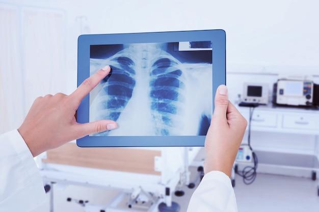 Zusammengesetztes bild des arztes, der röntgenstrahlen auf tablet betrachtet