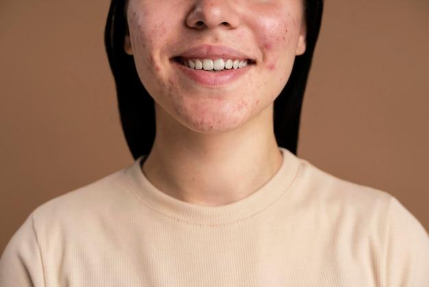 Zuversichtlich junge frau mit akne nahaufnahme