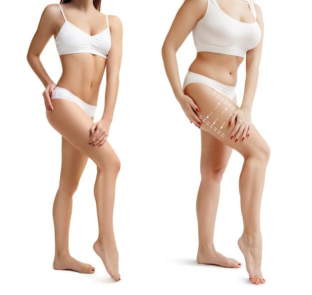 Zwei junge dicke und dünne frauen haben unterschiedliche figuren vergleichskonzept