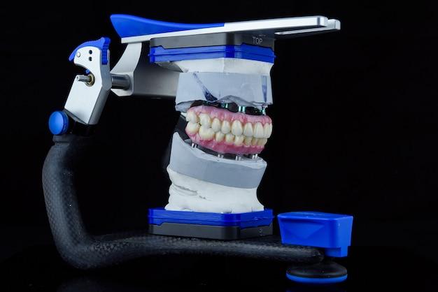 Zwei zahnkeramikprothesen im zahnartikulator