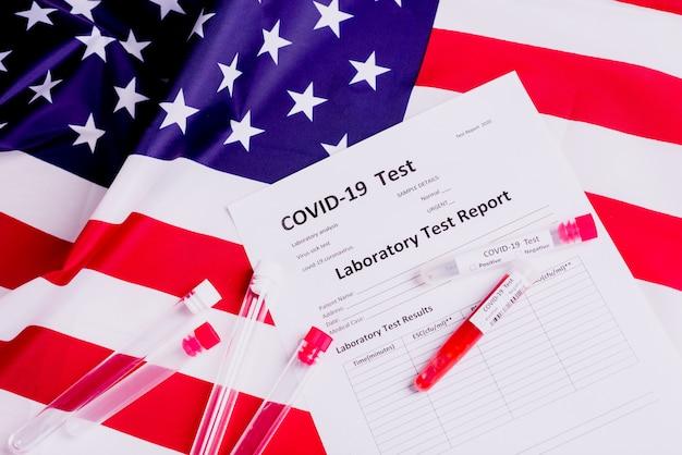 Лабораторный тест, специализирующийся на таких вирусных пандемиях, как ковид-19, исследует кровь больных американских патриотов.