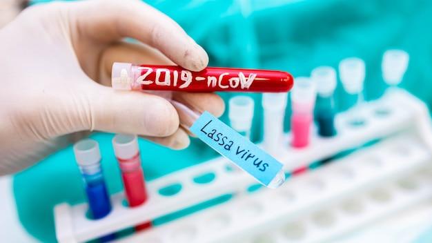 라사열과 코로나바이러스가 있는 2020 전염병 시험관