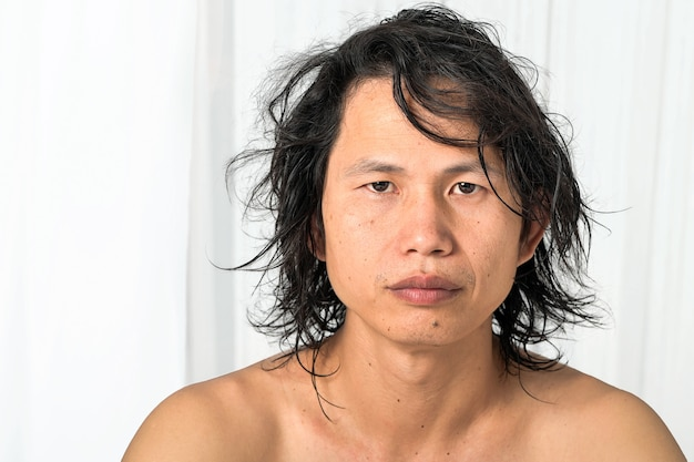 顔のクローズアップ:35〜40歳のアジア人男性で、肌に問題があり、にきびの跡、しわ、黒ずみ、スキンケアの欠如、乾燥肌に水分がない