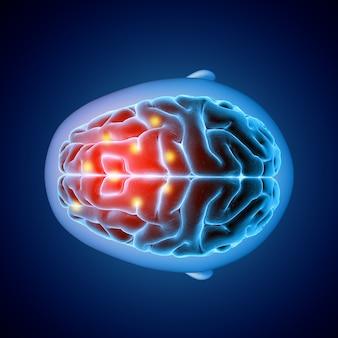 강조 표시된 부분이있는 뇌의 평면도를 보여주는 3d 의료 이미지