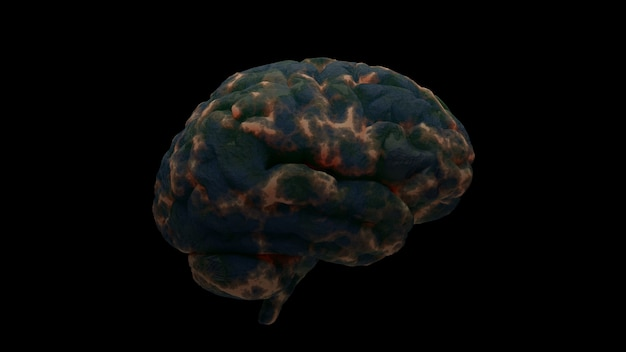 ダメージゾーンのある脳の3dレンダリング。感染症または脳損傷の概念の別の理由。孤立したイラスト。