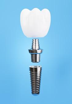 青の背景に歯科インプラントアセンブリの3dレンダリング