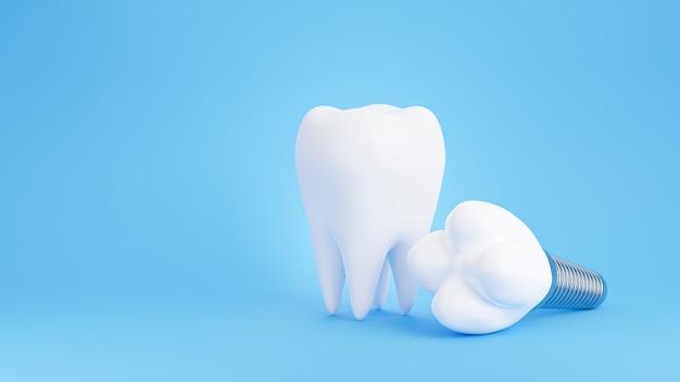 青い背景に歯科インプラントの3dレンダリング