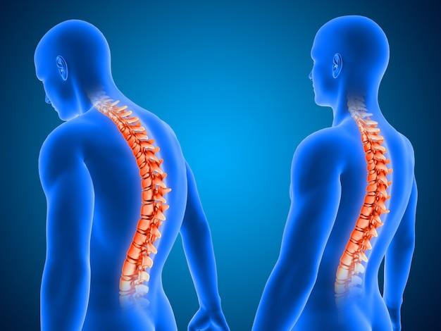 척추가 강조 표시된 정확하고 잘못된 자세를 보여주는 3d 렌더링