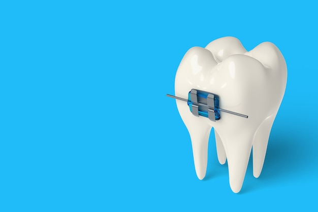 3d render tooth with ceramic and metal braces in gums
