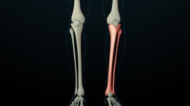 負傷した骨のある骨格構造の3dレンダリングされたイラスト。骨の痛みは赤い輝きで示されます。脚の部分の痛み。 Premium写真
