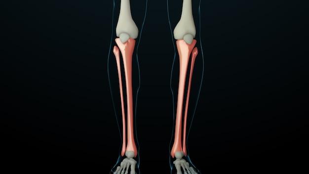 負傷した骨のある骨格構造の3dレンダリングされたイラスト。骨の痛みは赤い輝きで示されます。脚の部分の痛み。