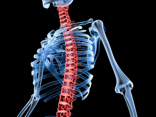 3d rendered illustration of a skeleton with painful back spine