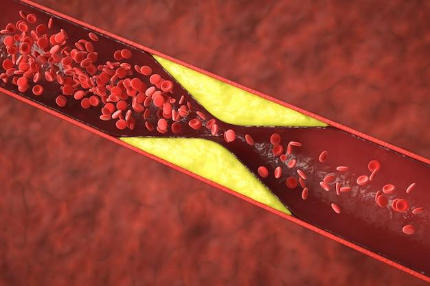 관상 동맥 질환의 원인이 되는 혈관에 콜레스테롤 혈액 또는 플라크가 있는 3d 렌더링 죽상 경화증