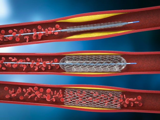3d визуализация процедуры баллонной ангиопластики со стентом в вене