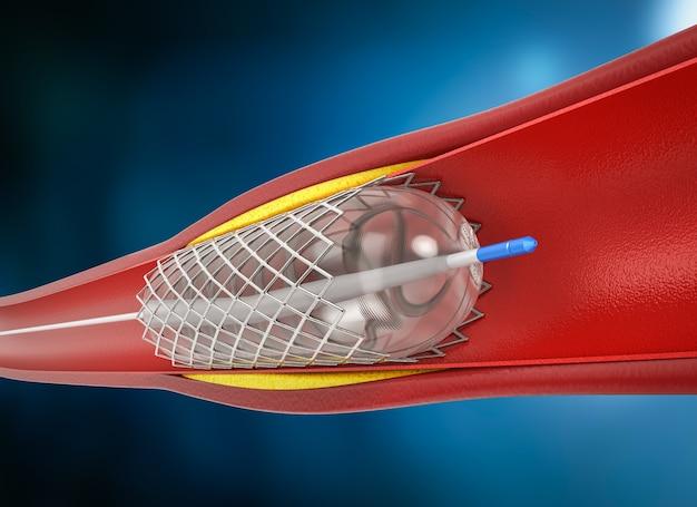 정맥에 스텐트가 있는 3d 렌더링 풍선 혈관 성형술