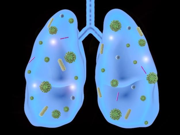 박테리아 세포와 3d 렌더링 폐 질환