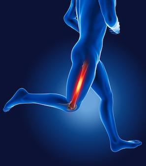 허벅지 뼈가 강조 표시된 3d 실행 의료 남자