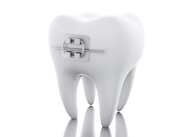 3d tooth with braces.