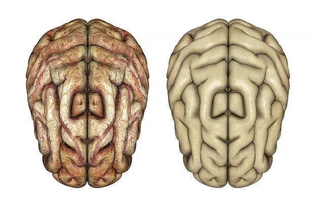 3d визуализации двух мозгов один здоровый и один больной
