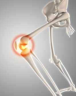 3d膝とスケルトンのレンダリングは、痛みを示す強調表示しました