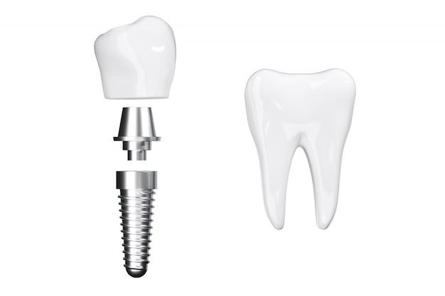 ビューティーホワイトの歯でクローズアッププロセスインプラントを分離します。 3dレンダリング