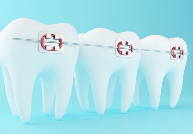 3d зуб с фигурными скобками.