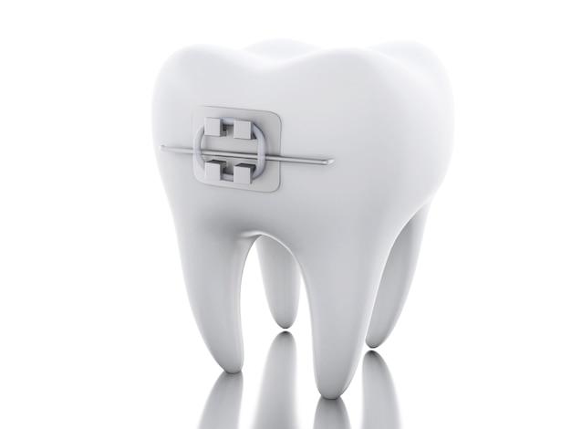 中括弧で3d歯。