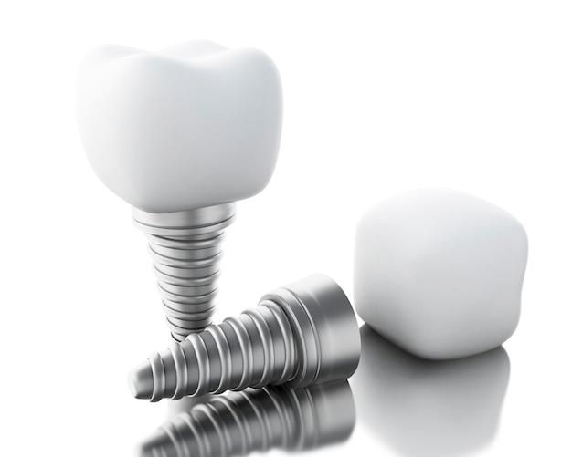 3d歯科インプラント。
