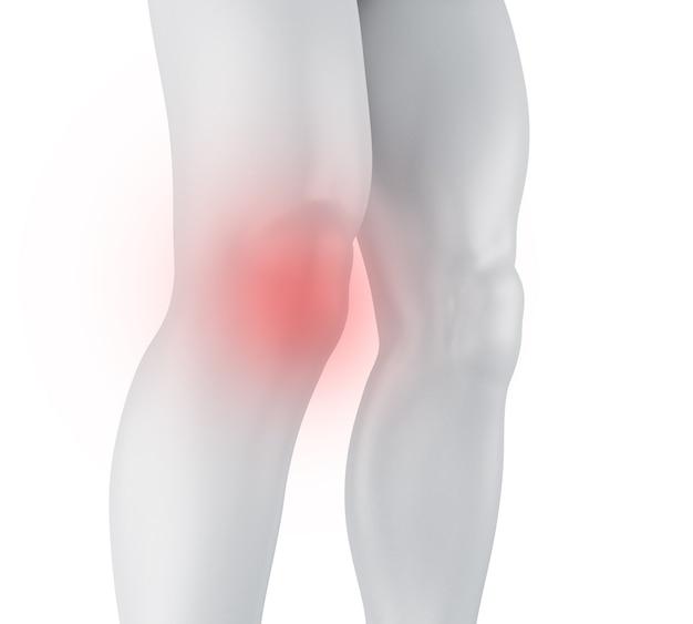 3d膝の痛み。